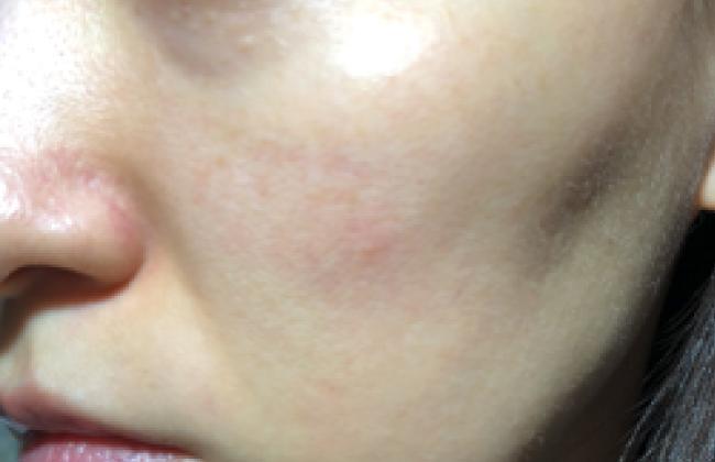ピコトーニング後の肌の状態