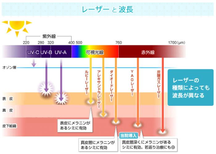 レーザーの種類