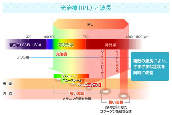 光治療と波長
