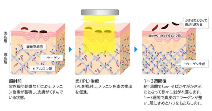 光治療のイメージ画像