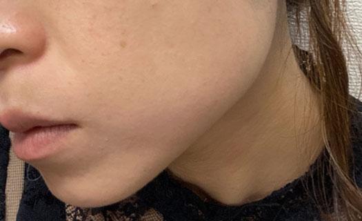シミ取りレーザー224日目の肌の写真