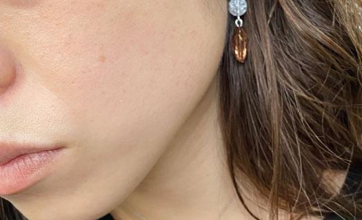 シミ取りレーザー396日目の肌の写真