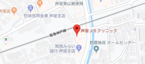 芦屋JSクリニック地図