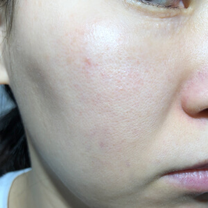 PICOレーザー3回目照射から4週間後の肌(右)