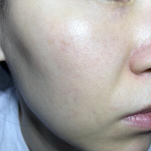 PICOレーザー4回目照射から4週間後の肌(右)
