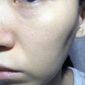 2回目の施術から4週間後の肌(左頬)
