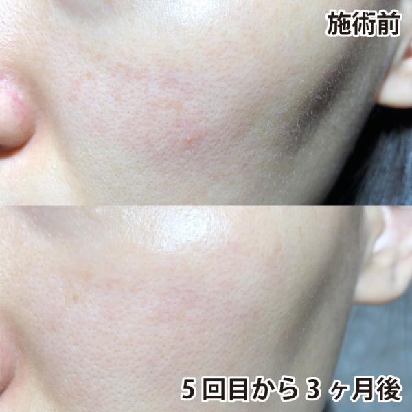 PICOレーザー施術前後の頬を比較(左)