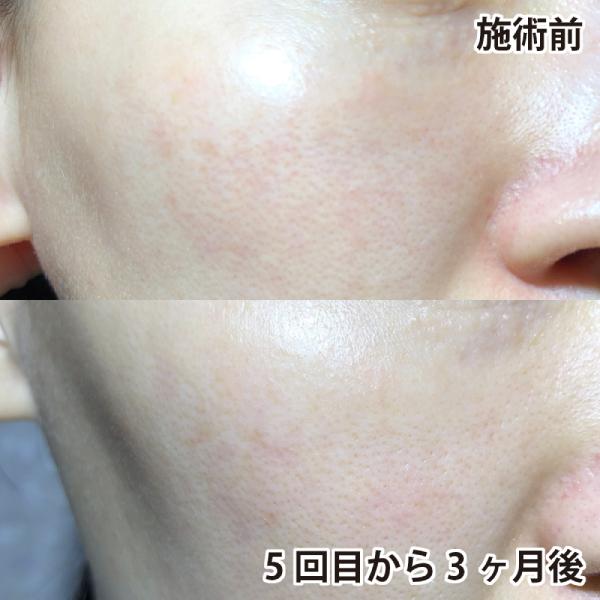 PICOレーザー施術前後の頬を比較(右)