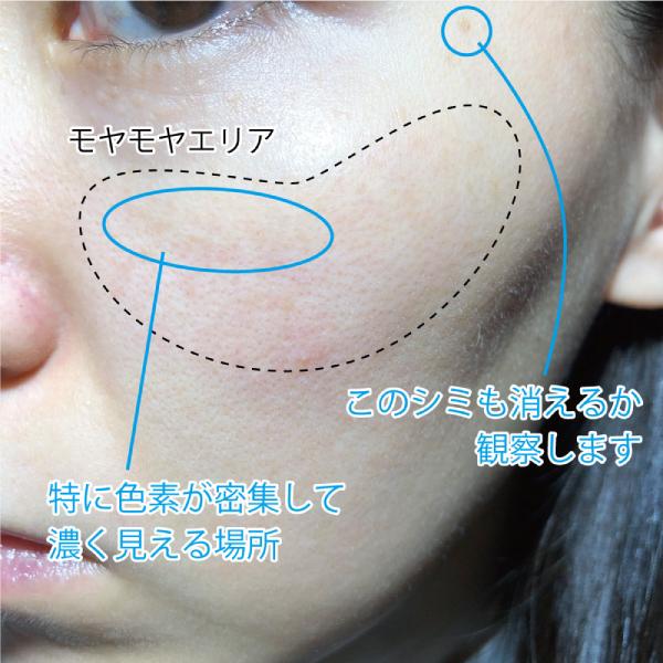肝斑が気になるエリア(左頬)