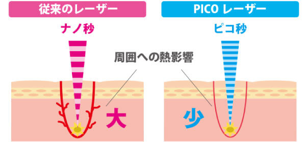 PICOレーザー照射時の肌へのダメージ比較