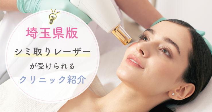 レーザーで顔のシミを取りたい方必見の埼玉県内にある美容クリニック集